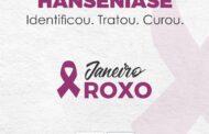 JANEIRO ROXO: Prefeitura realiza ações sobre a importância do combate à Hanseníase
